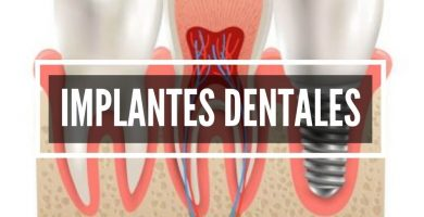 Implantes Dentales Cali